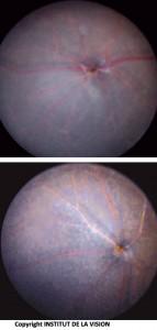 Fondo dell'occhio di topo knock out e controllo. I macrofagi sottoretinici (topo KO) sono visibili come piccoli punti bianchi.