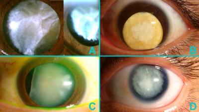 Fig. 3: Cataratte bianche anomale. Il contorno irregolare della capsula anteriore (A) fa presumere una contrazione della capsula, una fragilità zonulare e susseguenti difficoltà. Questa cataratta traumatica è prolassata in camera anteriore (B) una volta che la pupilla è stata dilatata. Ad un esame approfondito il paziente (C) è risultato avere un ampio settore di mancanza congenita della zonula. Talvolta le cataratte bianche possono essere associate ad altre comorbilità come in questo caso di aniridia (D).