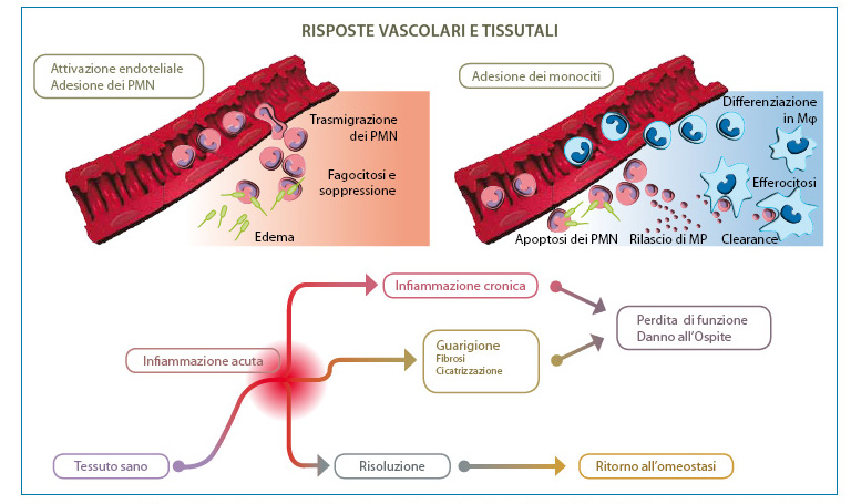 Fig. 1. Processo multistep nella risoluzione dell'infiammazione. Modificata da: Recchiuti A. Resolvin D1 and its GPCRs in resolution circuits of inflammation. Prostaglandins & Other Lipid Mediators. 2013;107: 64-76. Legenda: PMN: Leucociti polimorfonucleati; M: Macrofago; MP: Microparticelle plasmatiche.