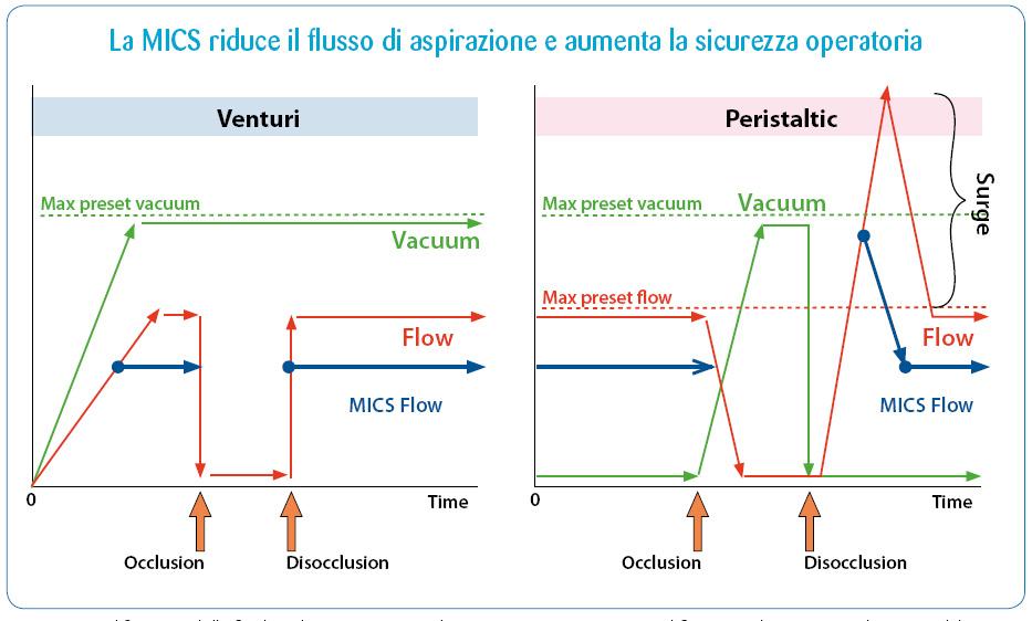 Fig. 1: Modificazioni della fluidica di aspirazione con la MICS. Con pompa a vuoto il flusso si riduce a parità di vuoto ed il sistema si equilibra a condizioni meno estreme. Con pompa peristaltica la riduzione del flusso riduce il surge alla disocclusione della pompa. Alla punta faco si sviluppa un vuoto anche in assenza di occlusione, che aiuta la rimozione delle masse.