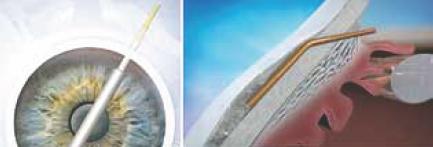 Fig. 5. Aquesys. A sinistra: impianto ab-interno. A destra: schema di funzionamento.