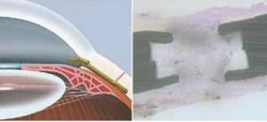 Fig. 6. A sinistra il Gold Shunt. A destra preparato istologico di Gold Shunt asportato: la fibrosi circonda ed invade lo shunt nella sua porzione distale.