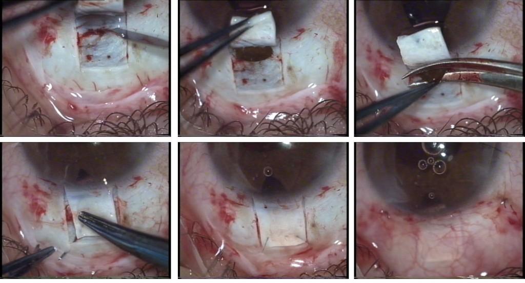Figg. 8 -14 - Fig. 8: Preparazione tunnel sclerale (che successivamente verrà convertito in sportello per la trabeculectomia). Fig. 9: Apertura della camera anteriore con bisturi precalibrato. Fig. 10: Esecuzione delle varie fasi di facoemulsificazione con impianto della IOL (da notare che spesso in occhi glaucomatosi non si ha una buona midriasi per presenza di sinechie posteriori). Fig. 11: Incisione con forbice del tunnel sclerale da un lato per la conversione dello stesso in sportello. Fig. 12 a-b: Asportazione di un tassello di tessuto sclerale sotto lo sportello con bisturi e forbice; incisione con bisturi (a), tassello sclero-corneale asportato (b). Fig. 13: Esecuzione di iridectomia periferica con pupilla in miosi. Fig. 14: Sutura dello sportello sclerale.