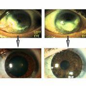 Ph. 2. LSD bilaterale prima e dopo il trattamento (per concessione del Dott. Paolo Rama).