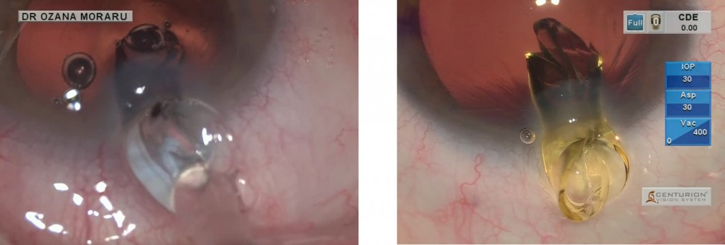 Ph. 1-2: Two different toric IOLs blocked in an 1.8 mm incision, leading to incision traumatic enlargement, with increased and incontrollabe SIA and maybe lack of self-sealing at the end of the procedure, needing for suture.