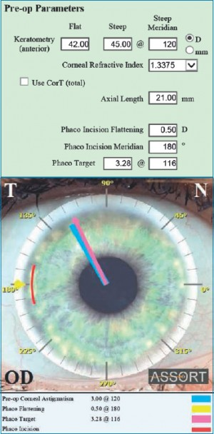 Fig. 1. SIFI ASSORT Toric IOL Calculator displaying the effect of the phaco incision placed temporally at 180 degrees on the preoperative corneal astigmatism.