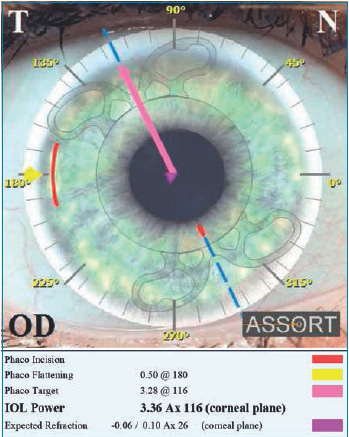 Fig. 3. SIFI ASSORT Toric IOL Calculator displays the calculated IOL power at the corneal plane and the expected refraction.