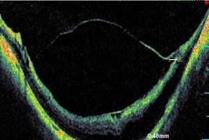 Fig. 5. Immagine OCT/SLO in paziente affetto da miopia patologica.