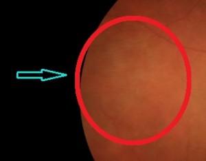 Fig. 7. Nell'immagine è possibile vedere un'area di trazione vitreo-retinica in periferia (zona cerchiata in rosso).